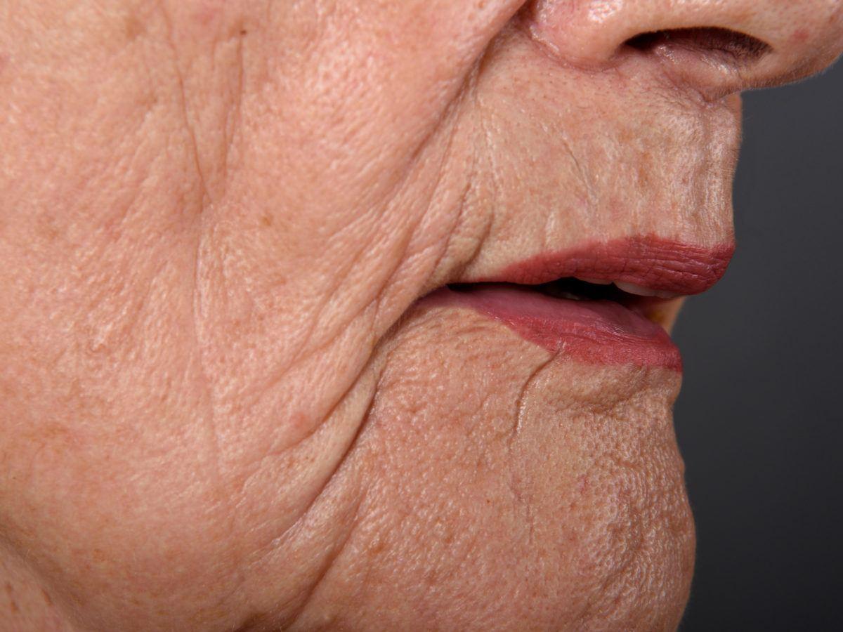How to Get Rid of Wrinkles   GetRidofThings.com