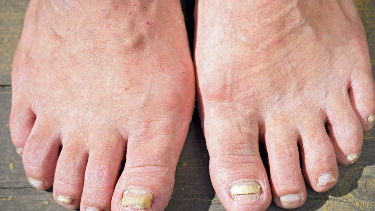 Image result for How Does Kerasal Work To Treat Nail Fungus!