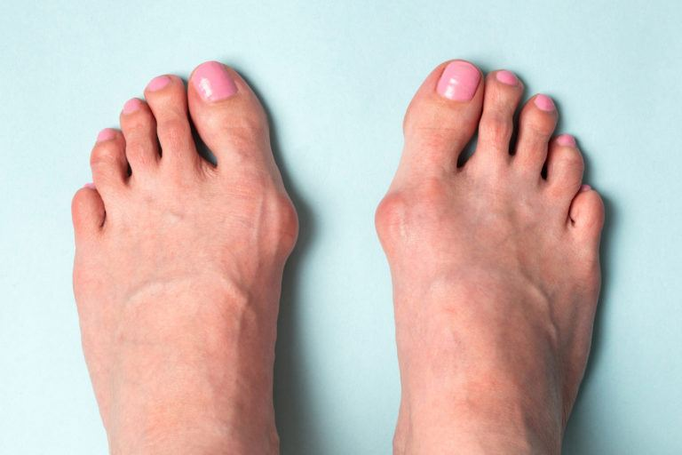 cf2d840bb How to Get Rid of Bunions