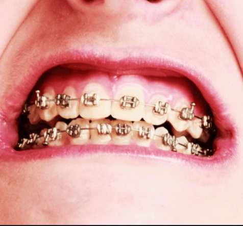 yellow teeth stain braces